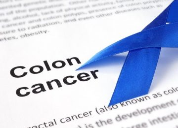 9 Foods That Reduce Your Risk of Colon Cancer