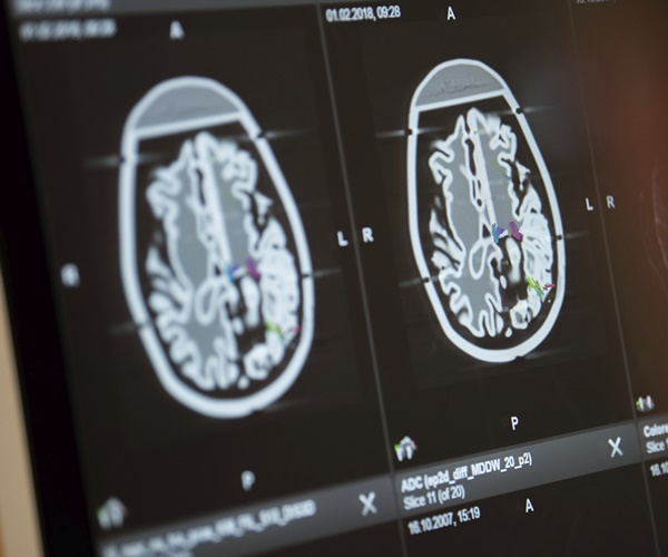 Brain Scans May Reveal Concussion Damage in Living Athletes